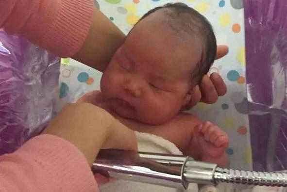 宝宝耳朵里有黄色液体,原因竟然是湿疹?