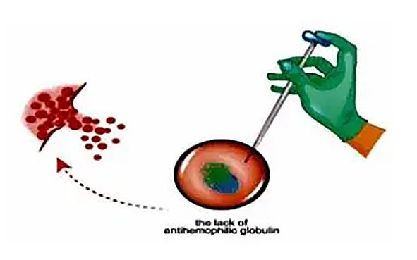 """当血友病患者的治疗效果遇到""""瓶颈""""?原因竟然是……"""