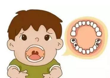 宝宝蛀牙危害有多大?来听听一颗牙齿的独白~